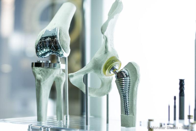 Gelenkersatz – letzte Option bei Arthrose