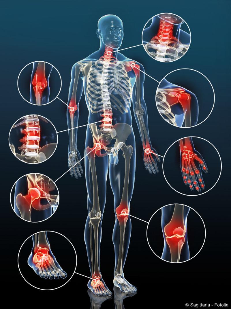 Arthrose kann jedes Gelenk betreffen