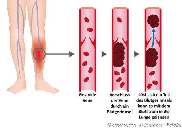 Entstehung einer Lungenembolie infolge einer Thrombose