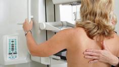 Mammografie, Screening, Brustkrebs, Früherkennung, Röntgenuntersuchung, Brust, Mammakarzinom