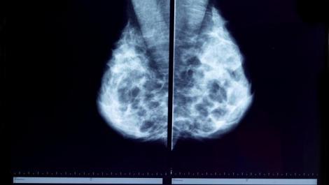 brust, brustkrebs, mammografie, röntgen, tumor