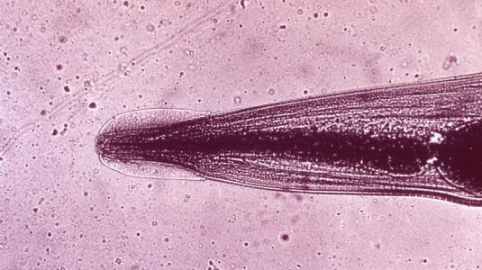 enterobius vermicularis, der madenwurm
