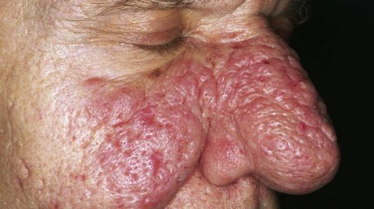 rosacea: rhinophym