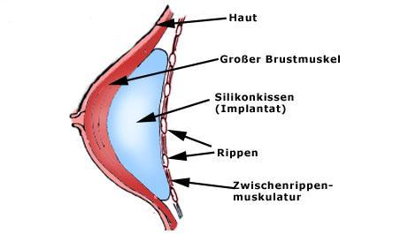 Brustaufbau, Brustkrebs, Brustrekonstruktion, Implantat, Silikon