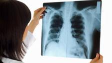 cystische fibrose, lunge, mukoviszidose, röntgen