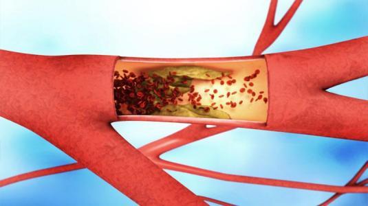 thrombendarteriektomie