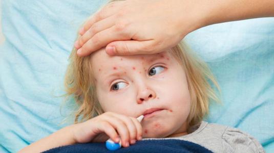 windpocken - wichtige impfung