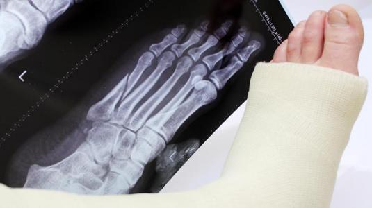 osteoporose: symptome