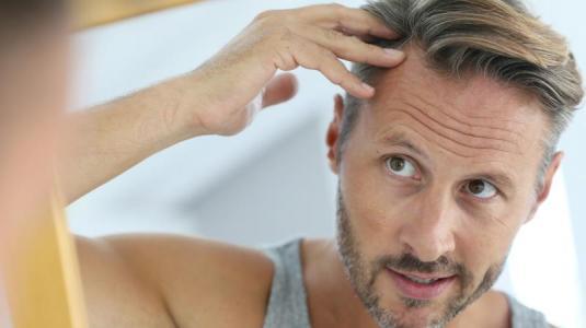 glatze, haarausfall, haare