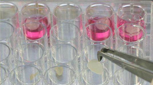 stammzellen aus schweißdrüsen könnten helfen wunden zu schließen