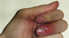 Der Nagel tschernejet auf der Hand gribok