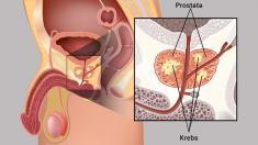 Prostatkrebs
