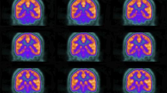 nervengewebe schwindet schnell nach querschnittslähmung