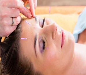 Akupunktur – wann hilft sie?