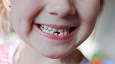 Zähne, Kinderzähne