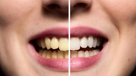 Kaffee Gelbe Zähne