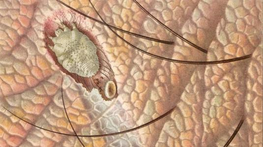 parasiten: krätzmilbe - untermieter in der haut - netdoktor.de