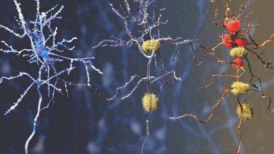 alzheimer, amyloid-