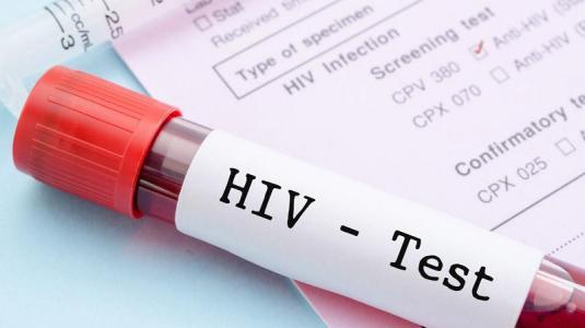 hiv-test