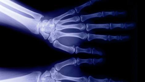 hände, röntgen, röntgenbild