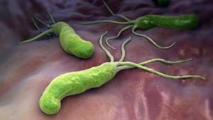 Helicobacter pylori Gastritis Magengeschwür
