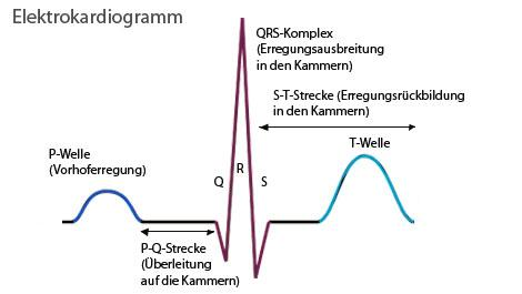 EKG, Elektrokardiogramm