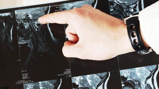 neurofibromatose: morbus recklinghausen