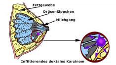 Duktales infiltrierendes Karzinom, Brustkrebs