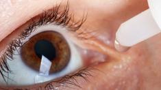 Augen, Tropfen, Allergie