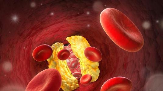 hypercholesterinämie