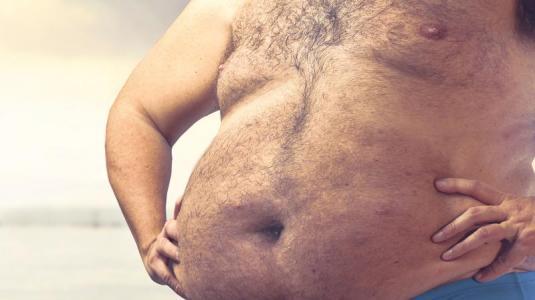 bauch, cushing-syndrom, fettleibigkeit, mann