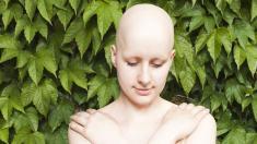 Chemotherapie, Krebs, Glatze