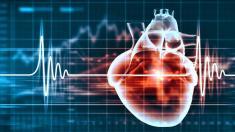 Herz, Herzrhythmusstörung