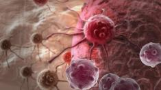 Darmkrebszellen brauchen Schwefelwasserstoff