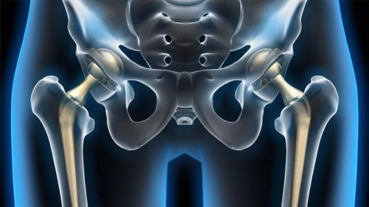endoprothese