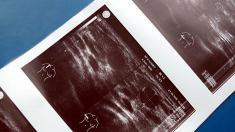 Brust, Ultraschall,