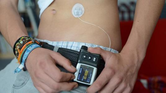 diabetes-pumpe mit sensorsystem schützt vor unterzuckerung