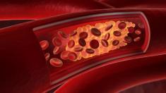 Gehemmte Darmbakterien schützen vor Arteriosklerose