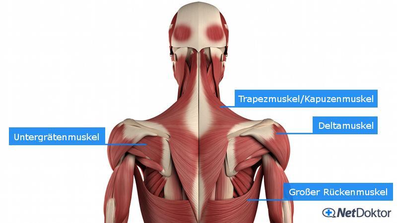 Muskelschmerzen: Auslöser und was man dagegen tun kann..