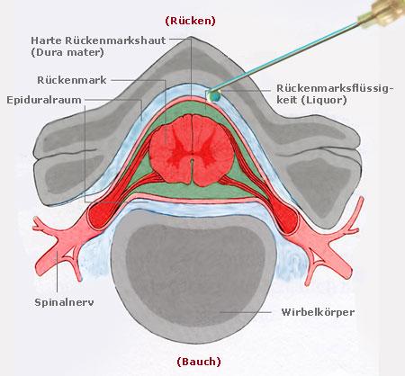 Epiduralraum (Spatium epidurale/ peridurale)    Med-koM